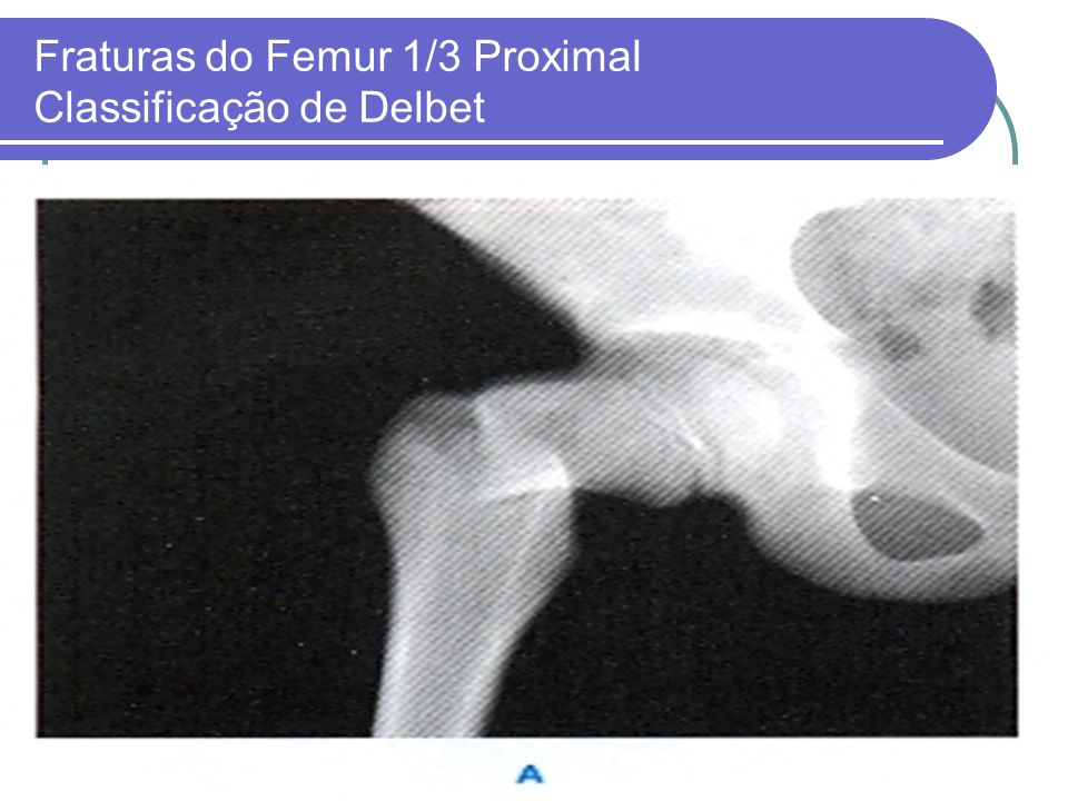 Fraturas do Femur 1/3 Proximal Classificação de Delbet