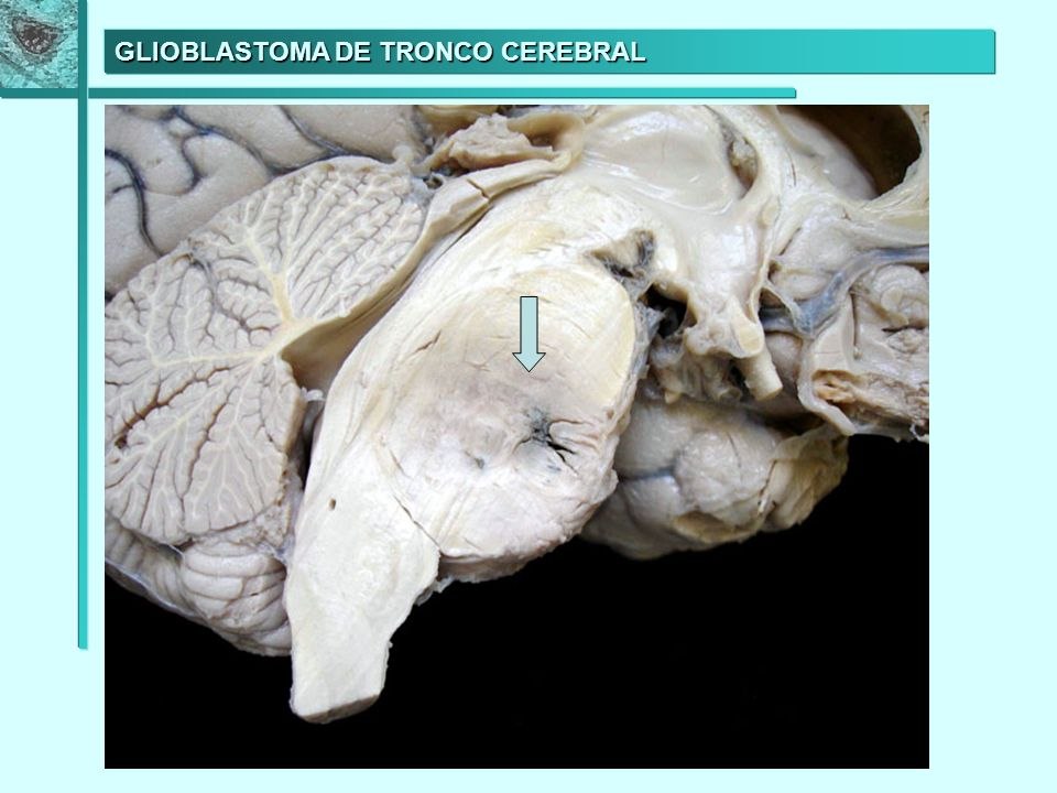 GLIOBLASTOMA DE TRONCO CEREBRAL