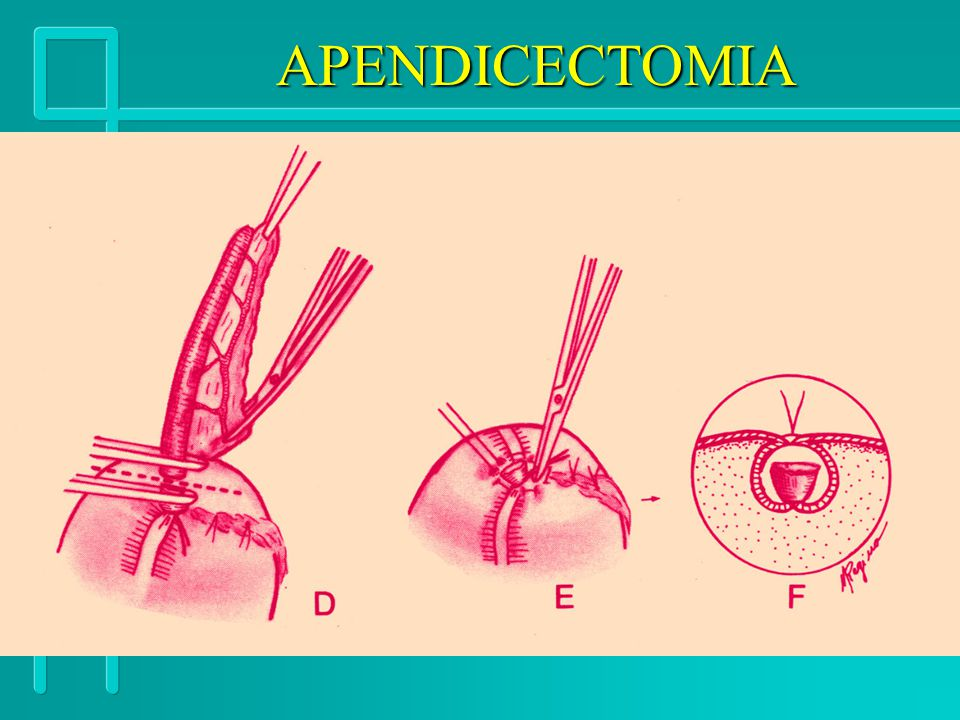 APENDICECTOMIA