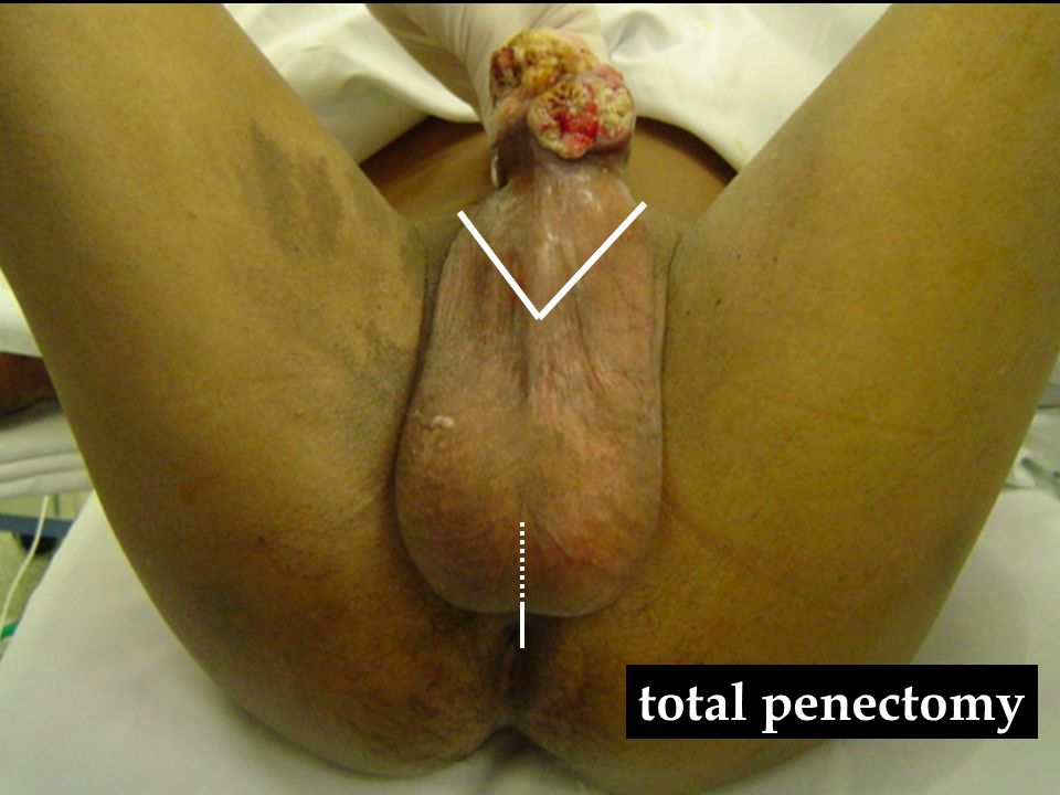total penectomy