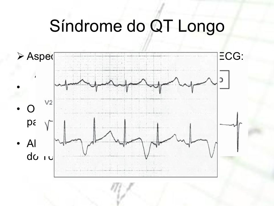 Síndrome do QT Longo Aspectos da Síndrome do QT Longo no ECG: