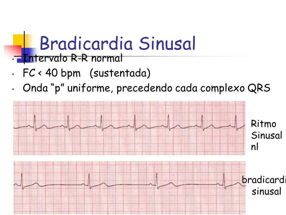 Bradicardia Sinusal Intervalo R-R normal FC < 40 bpm (sustentada)