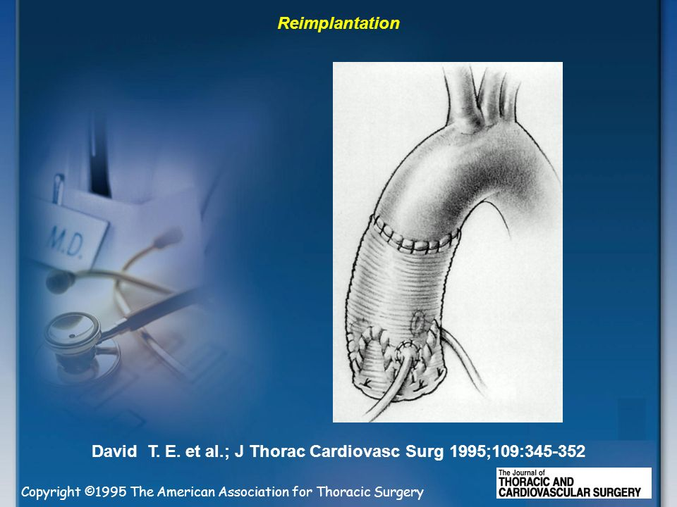 David T. E. et al.; J Thorac Cardiovasc Surg 1995;109: