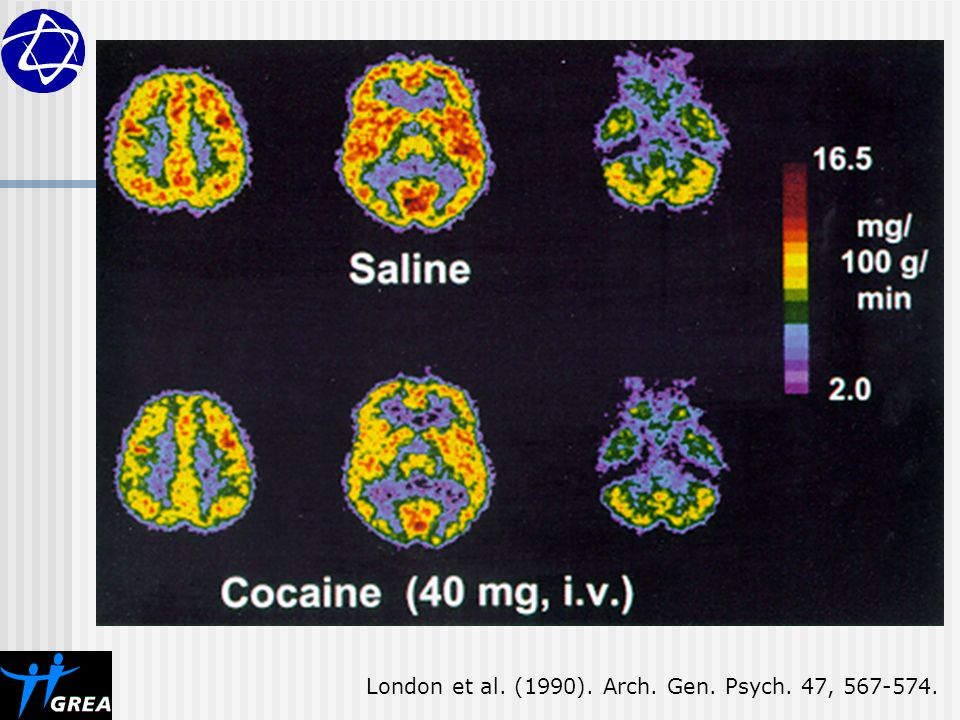 London et al. (1990). Arch. Gen. Psych. 47,