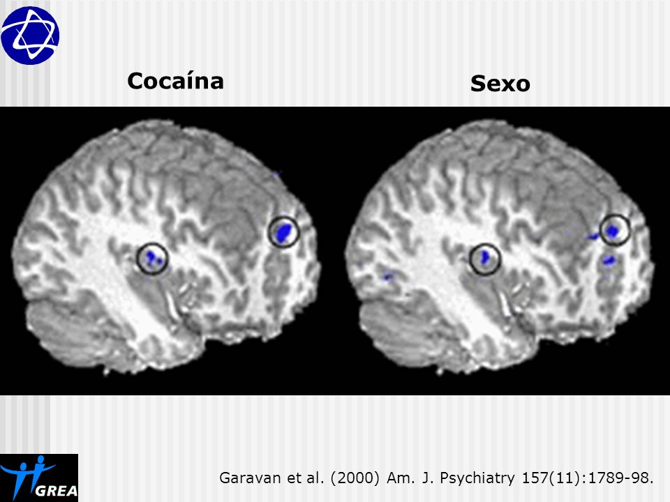 Cocaína Sexo Garavan et al. (2000) Am. J. Psychiatry 157(11):