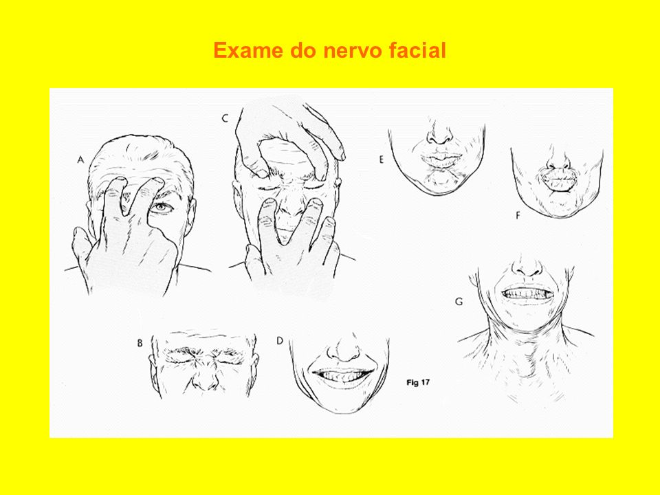 Exame do nervo facial