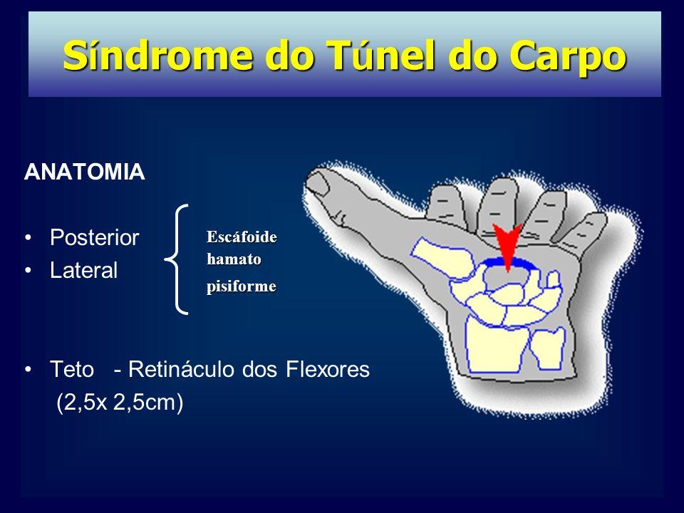 Asombroso Síndrome Del Túnel Carpiano Anatomía Cresta - Anatomía de ...