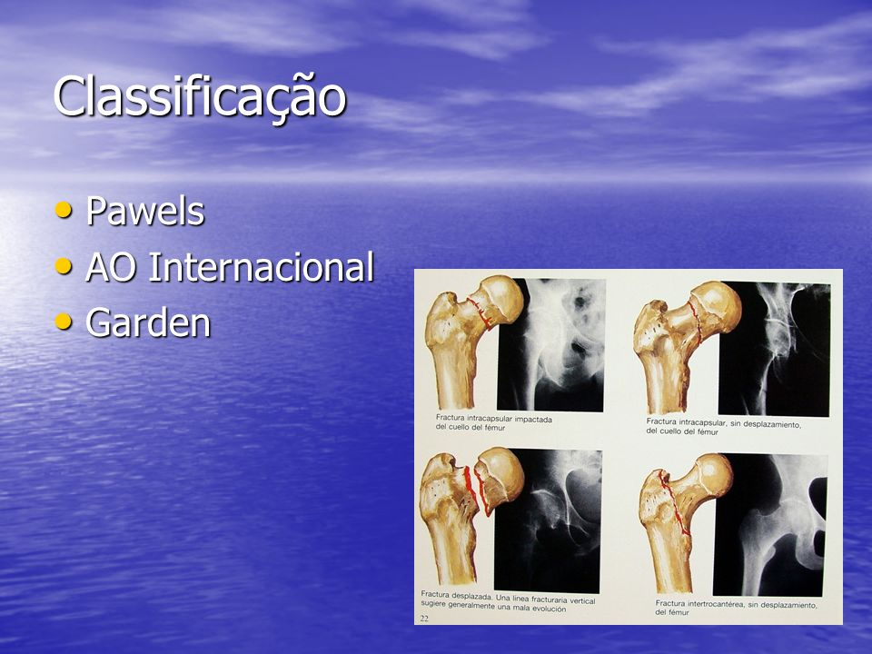 Classificação Pawels AO Internacional Garden
