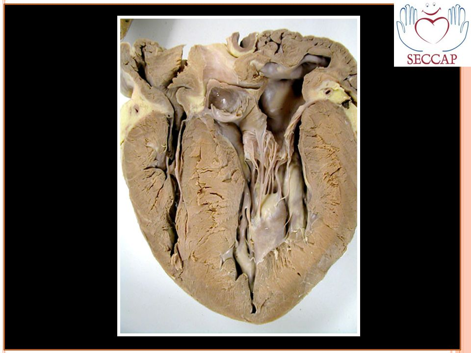 http://faculty.washington.edu/kepeter/119/images/beef_heart1.jpg