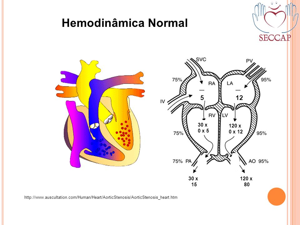 Hemodinâmica Normal 5 12 30 x 0 x 5 120 x 0 x 12 15 80