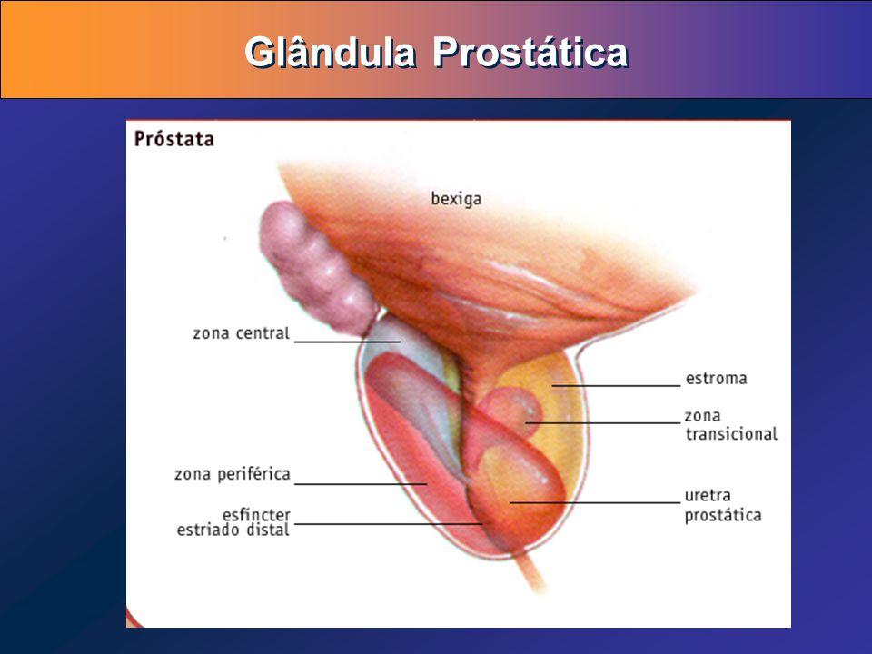 Fantástico Zonas Anatomía De Próstata Motivo - Imágenes de Anatomía ...
