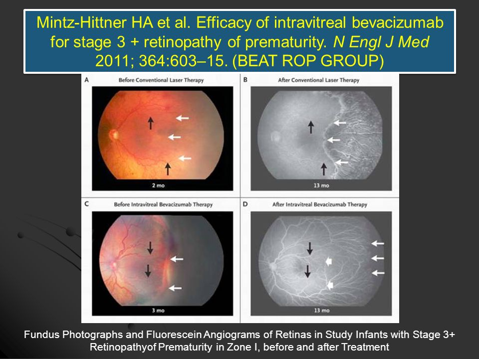 Mintz-Hittner HA et al. Efficacy of intravitreal bevacizumab for stage 3 + retinopathy of prematurity. N Engl J Med 2011; 364:603–15. (BEAT ROP GROUP)