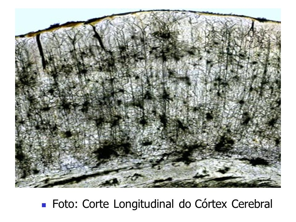 Foto: Corte Longitudinal do Córtex Cerebral
