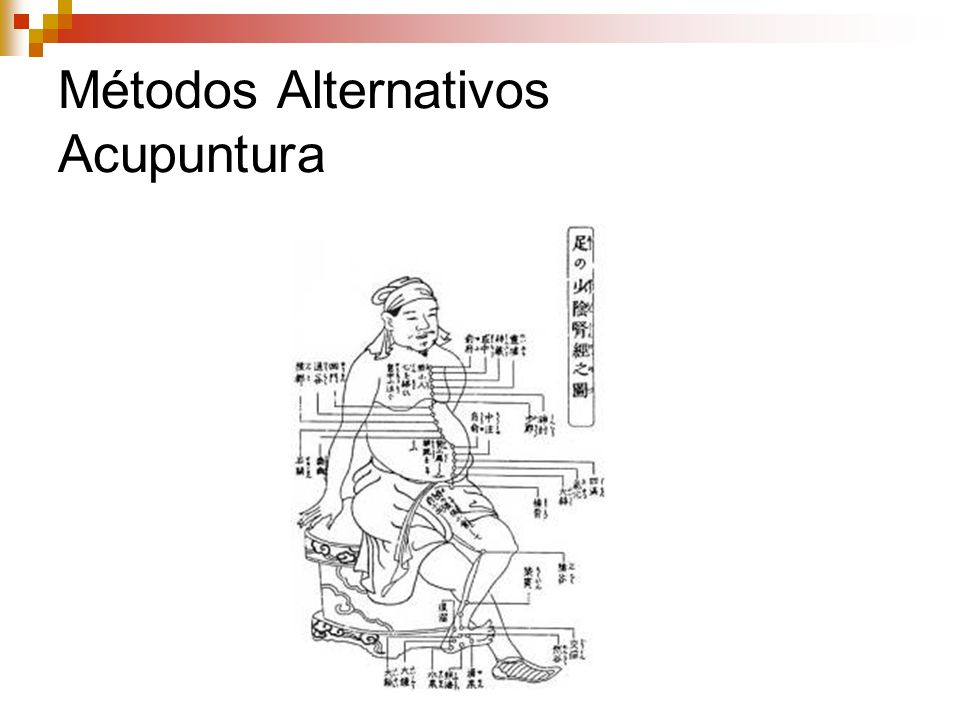 Métodos Alternativos Acupuntura