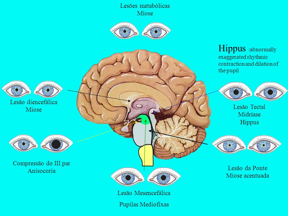 Lesões metabólicas Miose. Hippus :abnormally exaggerated rhythmic contraction and dilation of the pupil.