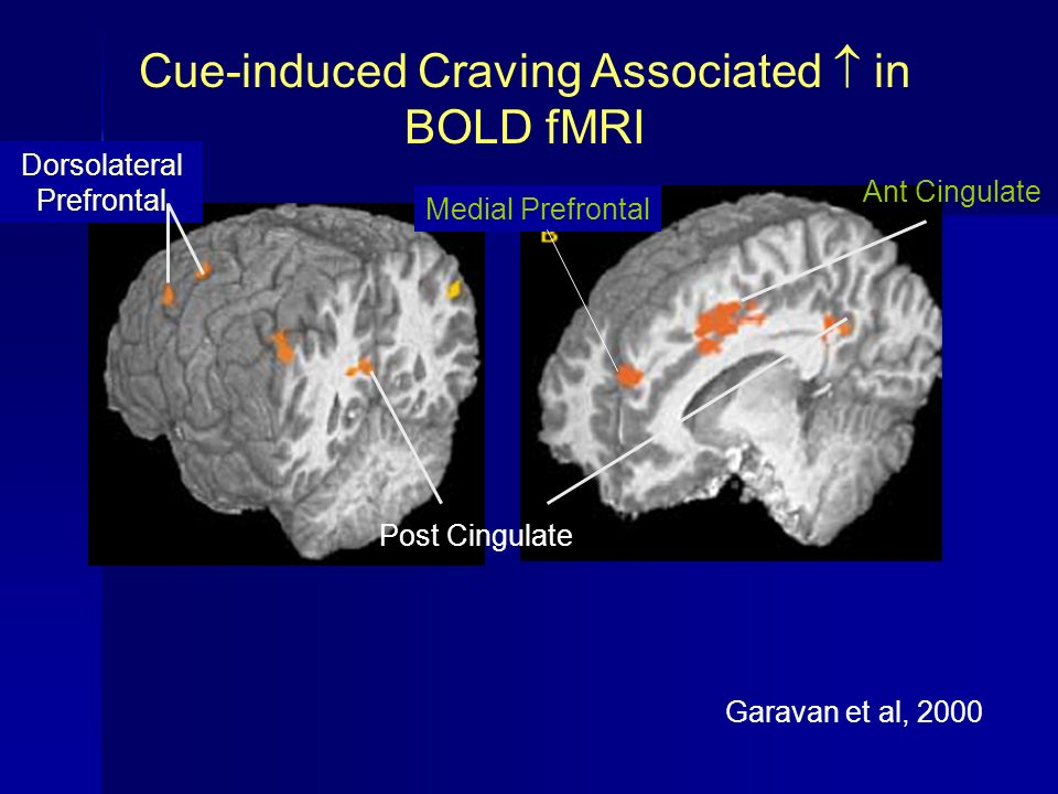 Cue-induced Craving Associated  in BOLD fMRI