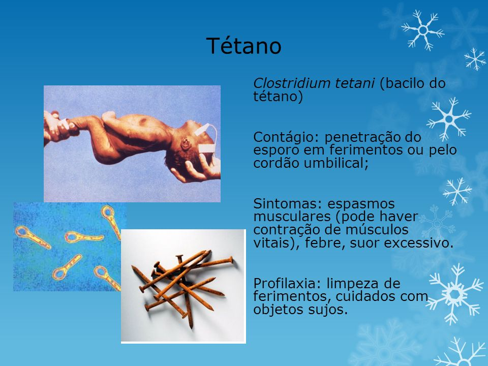 Tétano Clostridium tetani (bacilo do tétano)