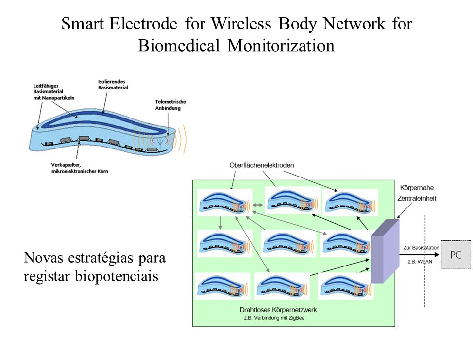 Smart Electrode for Wireless Body Network for Biomedical Monitorization